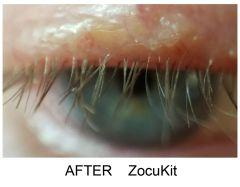 zocoshield-after